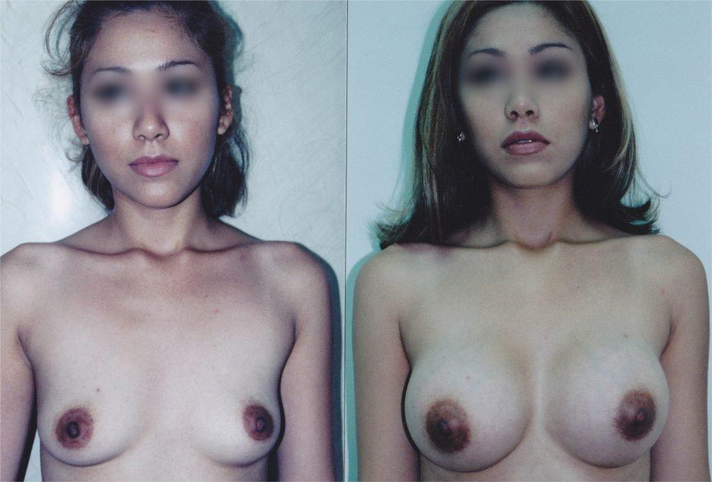 Breast Implant in Tijuana