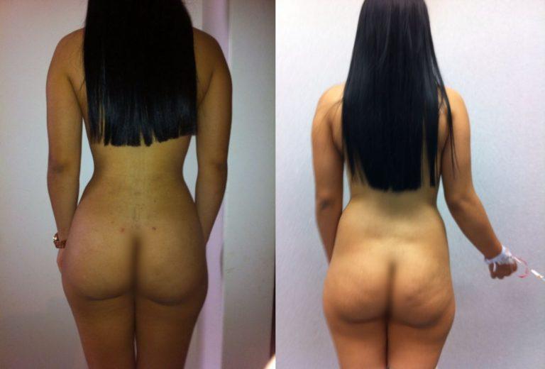 Great liposuction shape