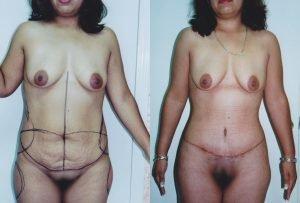 B&A Mommy Makeover Dr. Sergio Soberanes