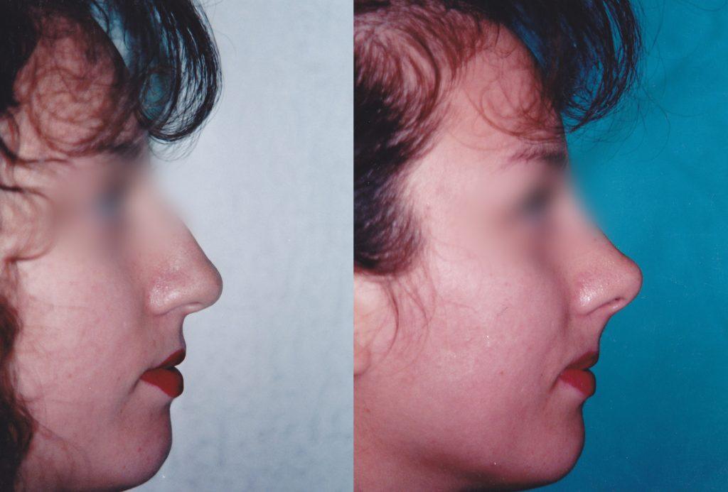 B&A rhinoplasty