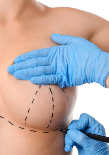 Breast Lift Da Vinci Plastic Surgery