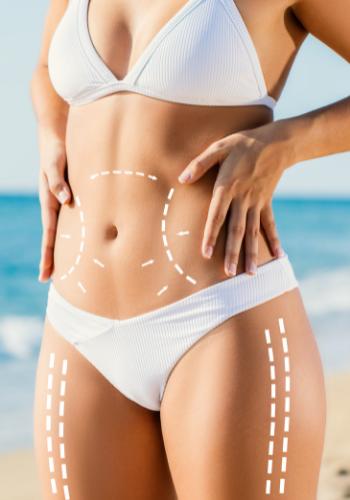 Liposuction or lipo 360