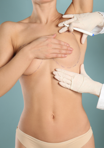 Breast reconstruction with Plastic Surgery in Tijuana Mexico by Dr. Sergio Soberanes